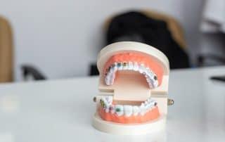 Zahnspange am Modell Vorteile Zahnspangenbehandlung